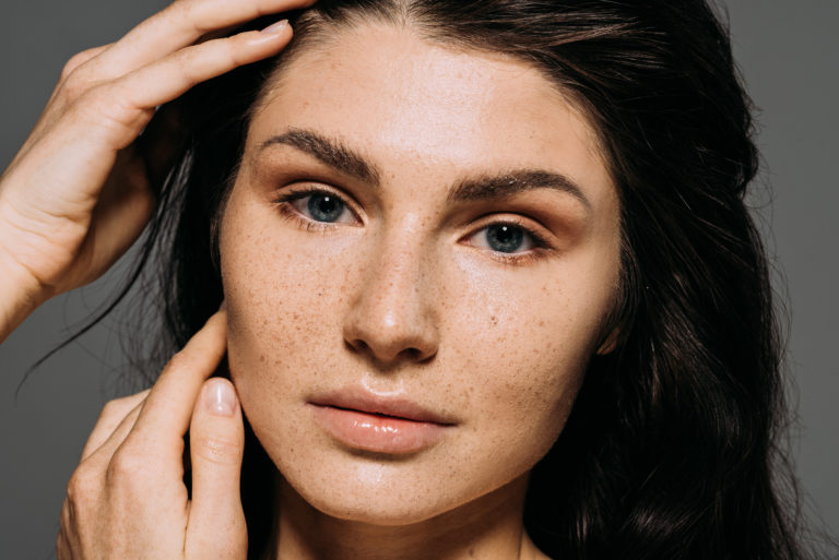 7 Best Freckle Removal Creams on the Market
