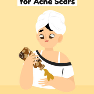 DIY Acne Scars Remover and Remedies to Try
