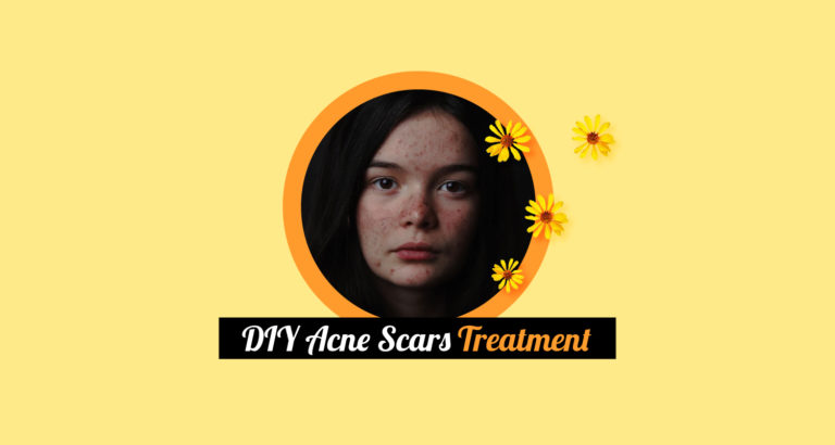 DIY Acne Scars Treatment