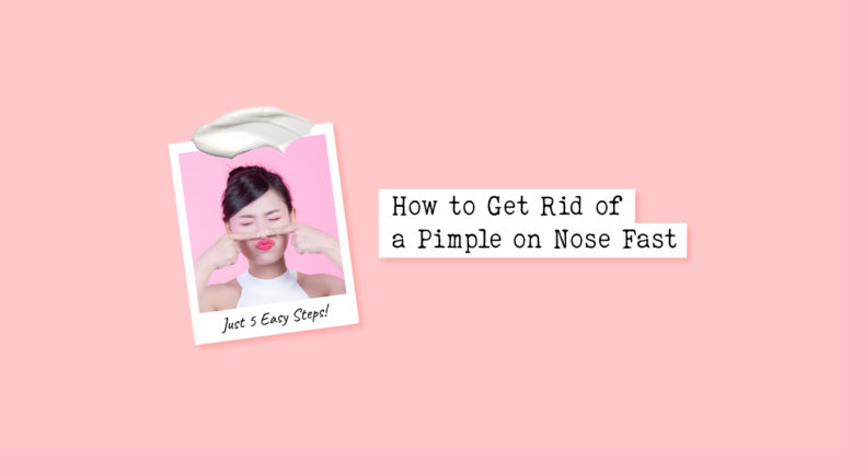 How to Get Rid of a Pimple on Nose Fast