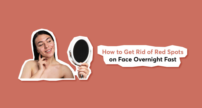 How to Get Rid of Red Spots on Face