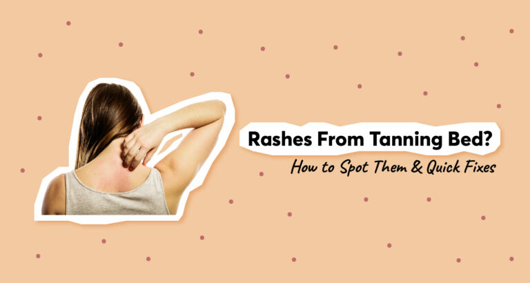 Rashes From Tanning Bed