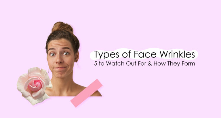 Types of Face Wrinkles
