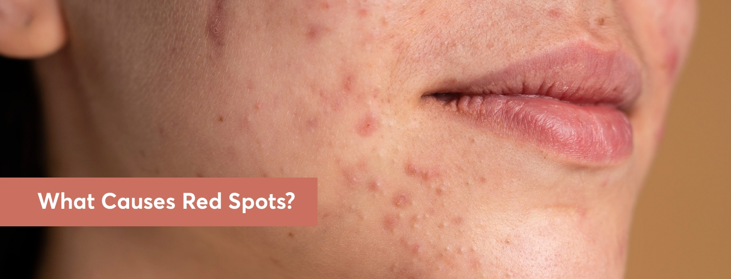 What Causes Red Spots